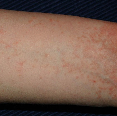 Skin conditions: Common rashes - WebMD Boots
